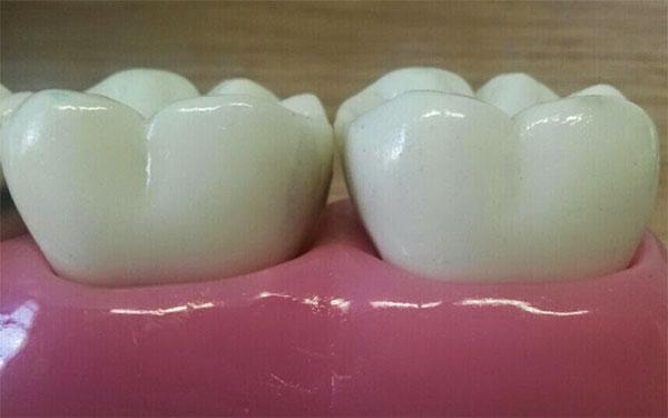 A cárie interproximal fica escondida entre os dentes