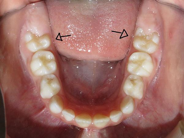 O primeiro molar permanente