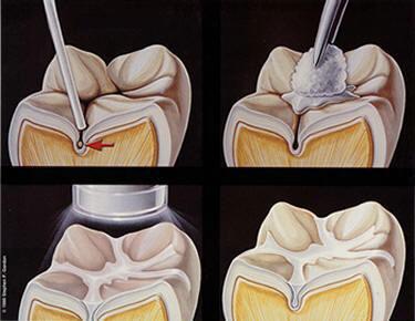 Aplicação do selante no dente, preenchendo os sulcos