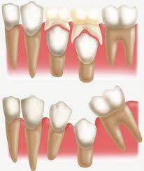 O dente de leite reserva o espaço para o permanente que vai chegar